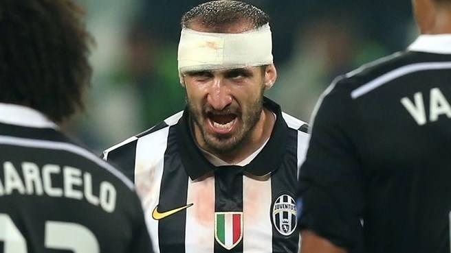 Zagueiro foi o grande desfalque da Juve na decisão. FOTO: UEFA